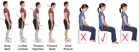 Examples of goodand bad body posture
